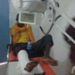 Man having his leg x-rayed